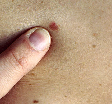 Melanoma Genome Project will map out future for skin cancer cures