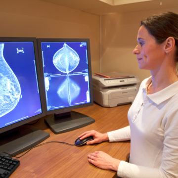 Manipulating molecules to enhance breast cancer treatment