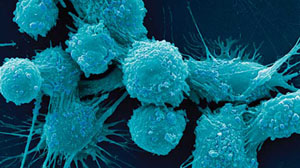 Ovarian Cancer Awareness month kicks off with significant discovery
