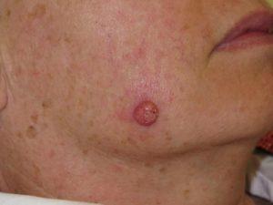 Skin cancer on a mole