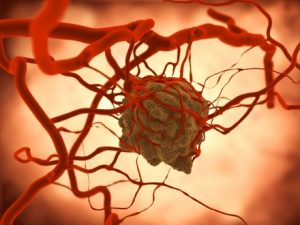 Understanding the diet of tumours to help in the development of new cancer therapies