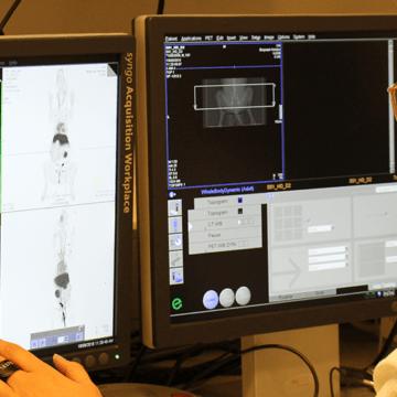 Hoover gives hope for nanomedicine cancer treatment