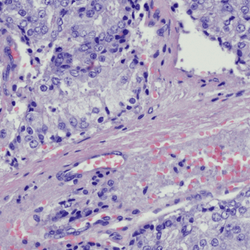Scientists find link between age and different subtypes of bowel cancer