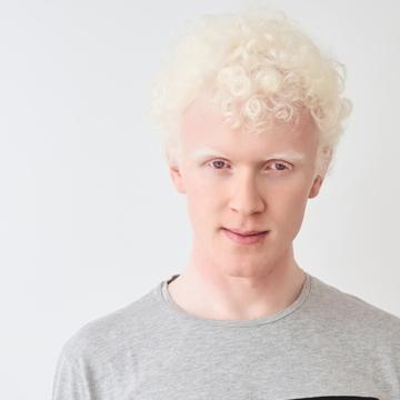 Pale melanomas masked by albino gene